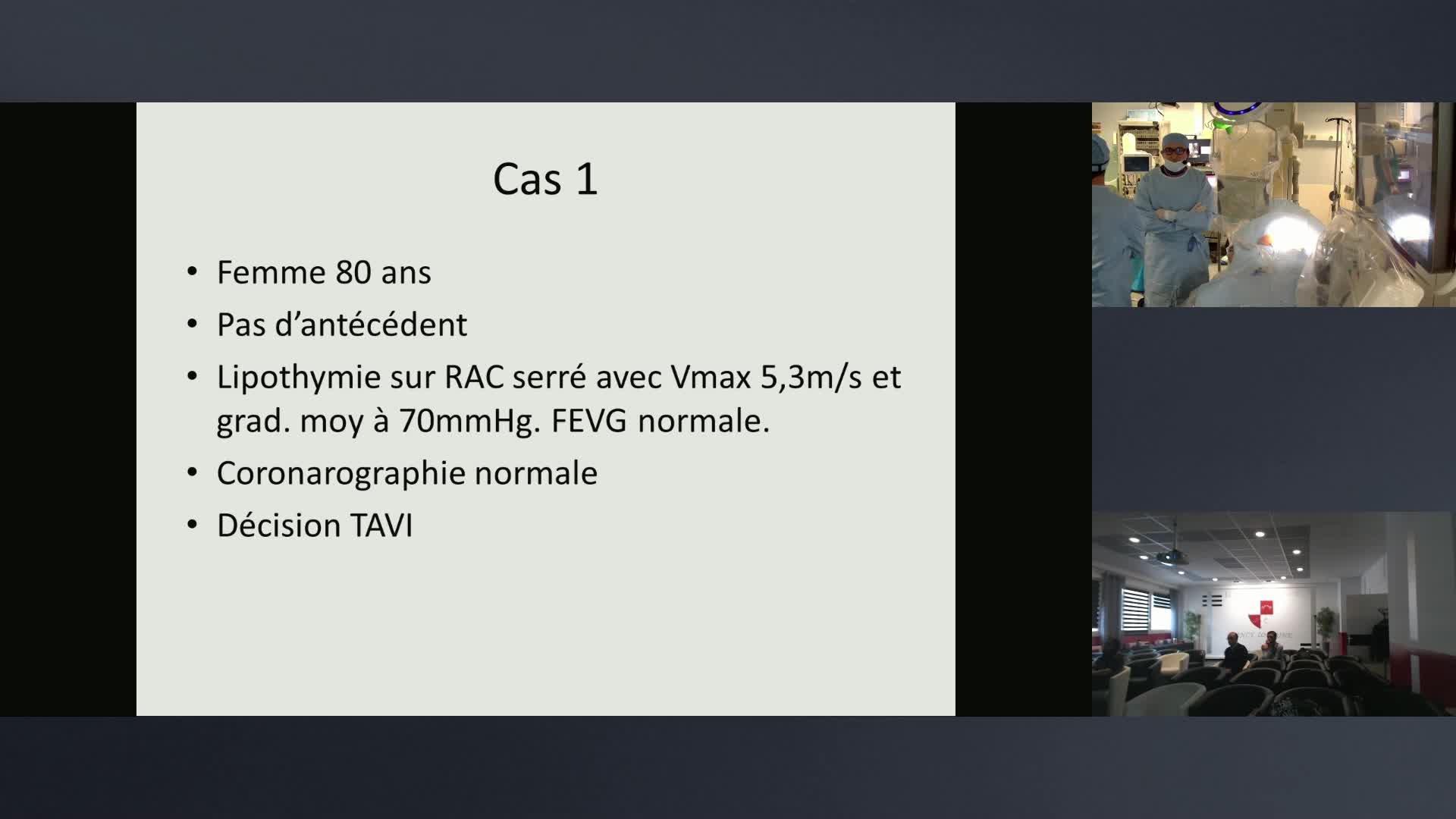 Procédure TAVI - Hopital HENRI MONDOR