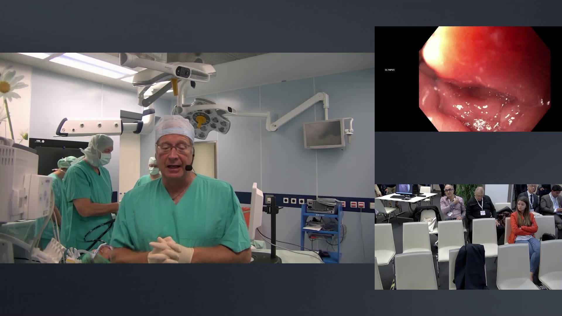 Transoral anti reflux therapy course - Session 1, surgery 1