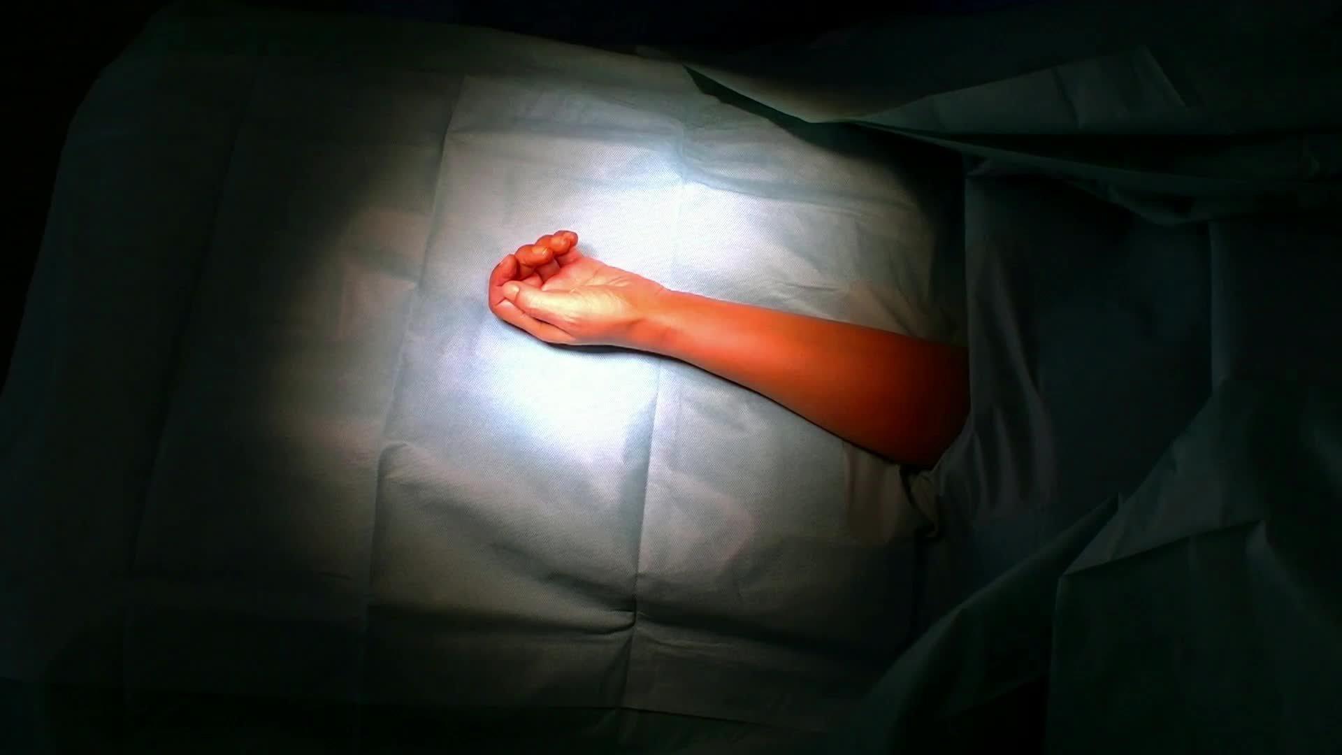 Ostéotomie Modélisée pour la correction d'un cal vicieux du radius distal.